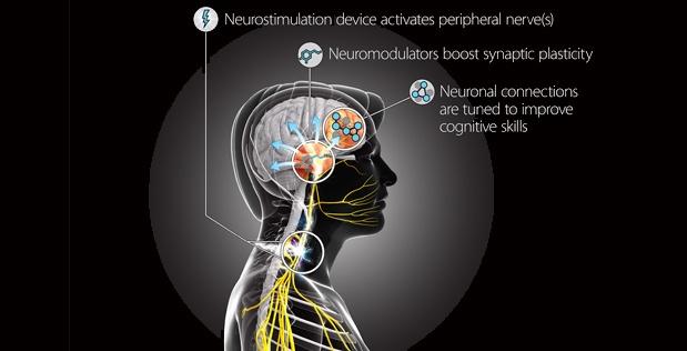 """美国正在研发大脑""""超频""""芯片:学习力猛增"""